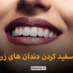رتوش و سفید کردن دندان ها در فتوشاپ